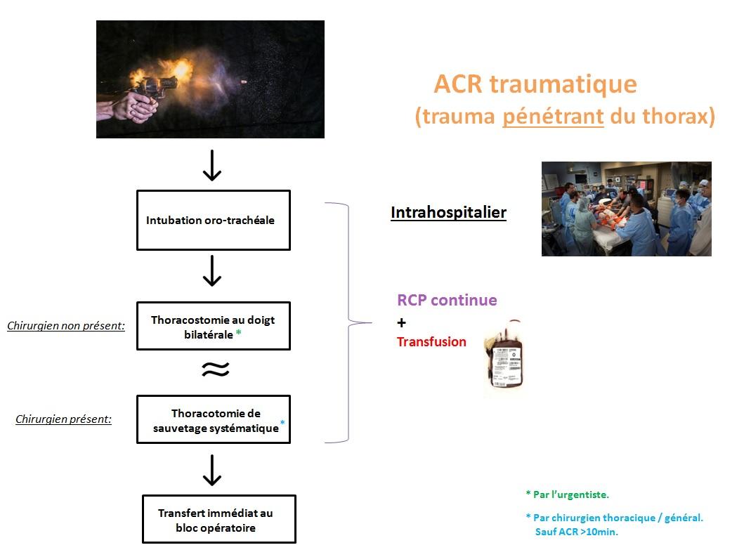 schematrauma3